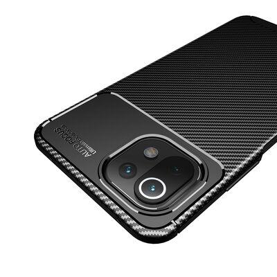Xiaomi Mi 11 Lite Kılıf Zore Negro Silikon