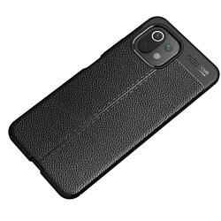 Xiaomi Mi 11 Lite Kılıf Zore Niss Silikon - Thumbnail