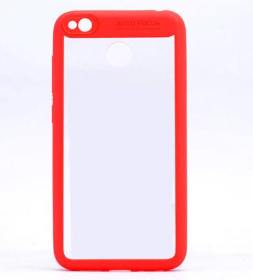 Xiaomi Redmi 4X Kılıf Zore Buttom Kapak